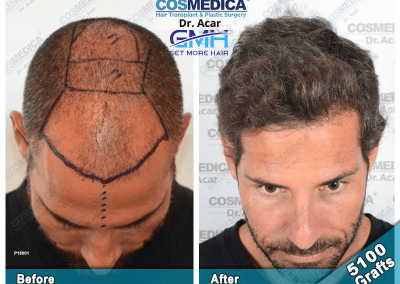 Before & After - Get More Hair